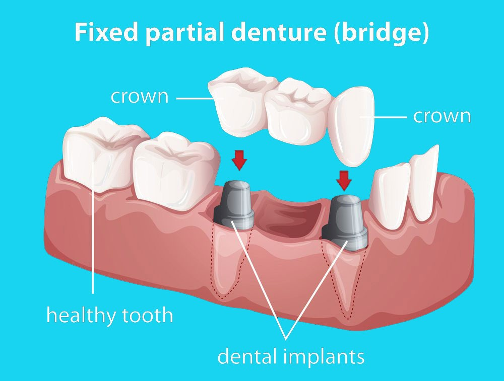 Info Graphic Of A Fixed Partial Denture
