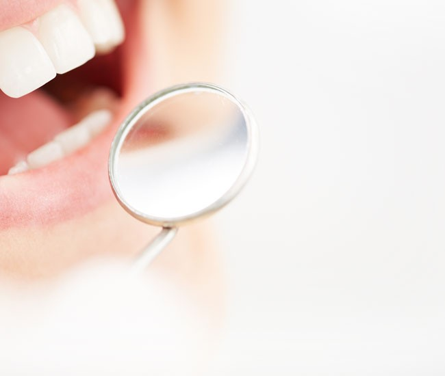 dental fillings and restorations in Voorhees  and Cinnaminson NJ
